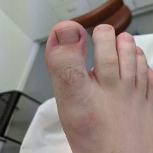 ingrown toenail example